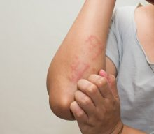 Allergies – Hypersensitivity Type 1